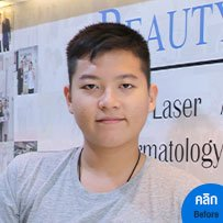 model-after-acne-bsl-clinic-ผลการรักษาสิว-04